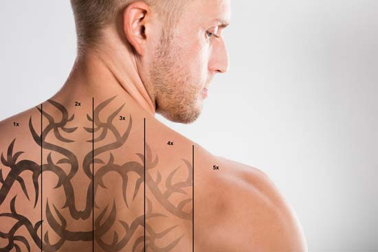 home tattoo removal methods