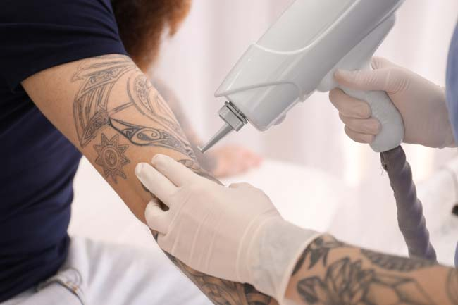 home tattoo removal