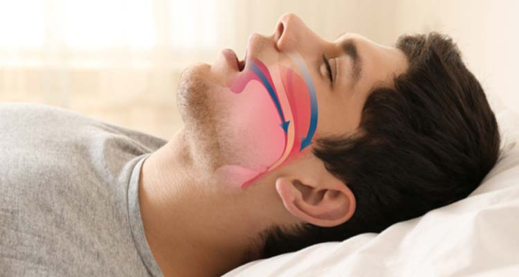 How Can I Stop Snoring Naturally