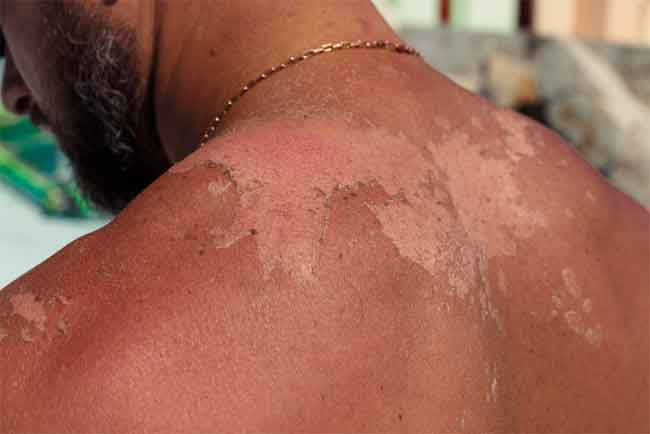 How to Relieve Sunburn Pain